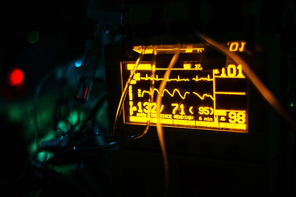 A patient's vital signs are displayed on a piece of medical equipment during an aeromedical evacuation flight Nov. 30, 2012, over Afghanistan. The 451st Expeditionary Aeromedical Evacuation Flight critical care air transport team's mission is to operate an intensive care unit in an aircraft during flight, which helps save the lives of critically Wounded Warriors. (U.S. Air Force photo/Staff Sgt. Jonathan Snyder)
